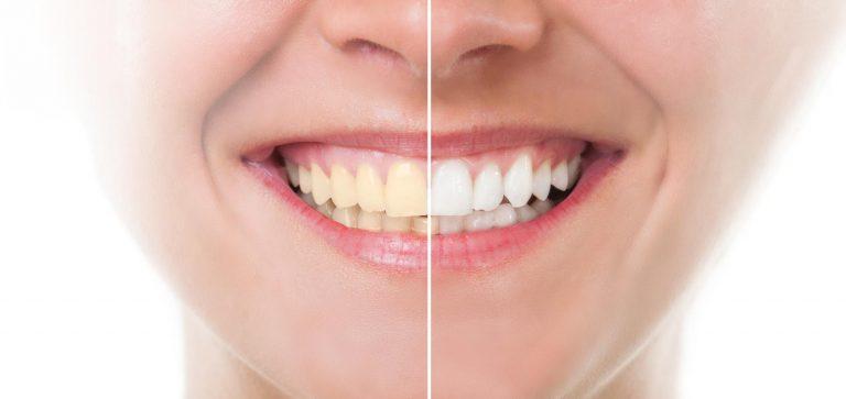 teeth-bleaching